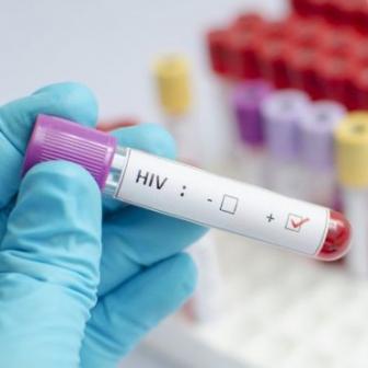 วัคซีน HIV มีแววพัฒนาสำเร็จหลังทดสอบในมนุษย์แล้วผลลัพธ์ค่อนข้างดี